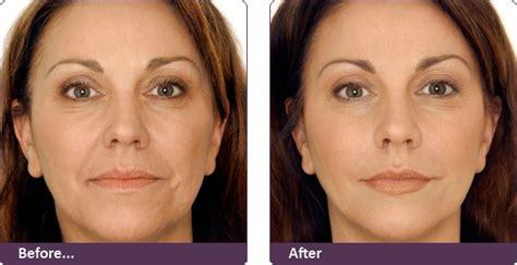 viva anti wrinkle botox discussion sans comments