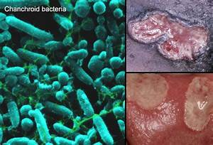 Slideshow: Pictures and Facts About STDs | Healthy stuff ...