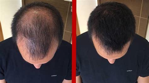 caida en el salon de 7 formas de detener la caída cabello en el hombre