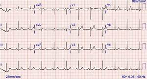 Repeat 12 Lead Ekg Showing Normal Sinus Rhythm