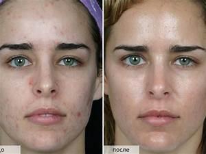Дарсонваль от морщин фото до и после