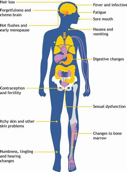 Chemotherapy Effects Side Cancer Infection Nz Treatment