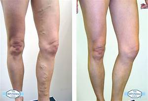 Varicose Veins - Everything You Need To Know - My Weekly