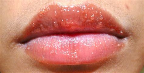 Lip Rash Allergy Pictures Photos