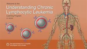 [Alternative text]  Menopause Chronic lymphocytic leukemia (CLL)