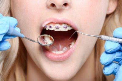 teen  adult braces cost   uk  type