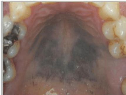purpleblue dyspigmentation   mucosa   hard
