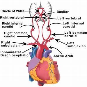 Cerebrovascular Sonography