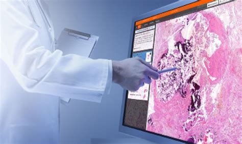 chronic diseases sweep way digital pathology market