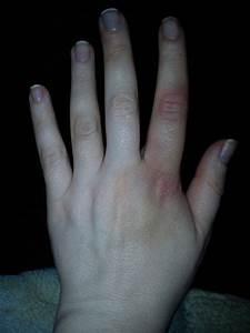 Сустав пальца опух не болит