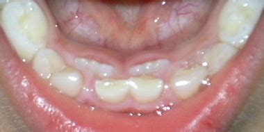 乳歯 抜け ない 永久歯 生える