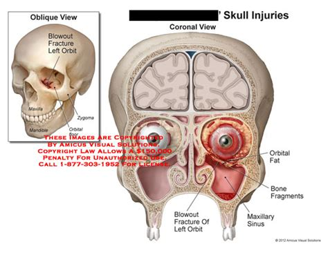 fracture orbital floor blowout amicus illustration of amicus injury skull blowout