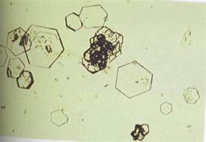 Cystine Crystals Urine