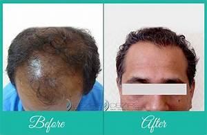 Best Hair Restoration For Men Women In Pune Hair
