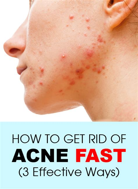 How To Get Rid Of Acne Fast (3 Effective Ways)  Fashion Daily
