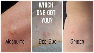 Mosquito  Bed Bug  Spider Bites Difference Diagram
