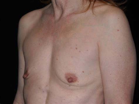 Flat Saggy Tits – Erotic Pictures