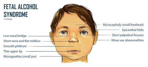 fetal alcohol syndrome pediatrics medbullets step