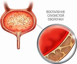 Воспаление простатита лечение