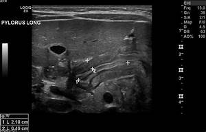 17 Best Images About Pyloric Stenosis  On Pinterest