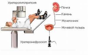 Чистотел и лечение простатита