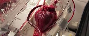 Person Skills For Resume New Device Can Revive A Heart After Death For Use In