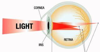 refleksiology energi murni terapi untuk penderita mata silinder