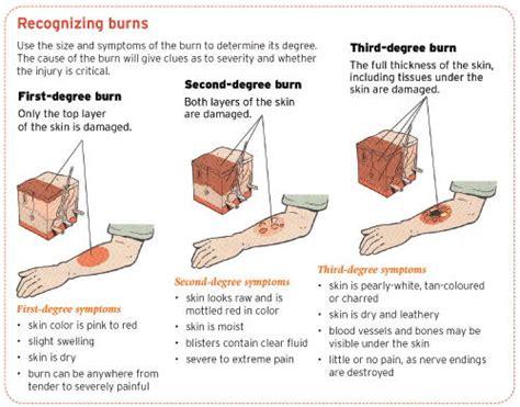 treat  burn ent wellbeing sydney