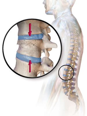 vertebral compression fractures symptoms complications