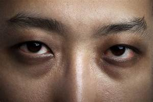 Are dark circles and under eye bags caused by lack of ...