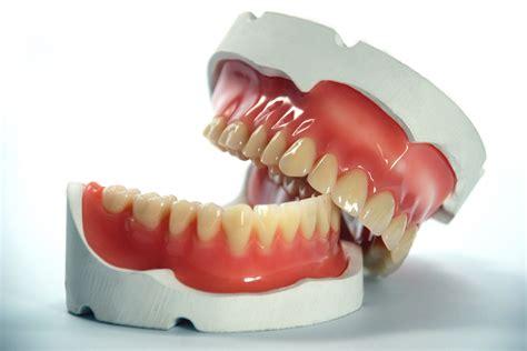 protesi mobile totale protesi mobile totale dentiera studio dentistico giuva