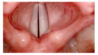 epiglottis   AnatomyBox  Epiglottis