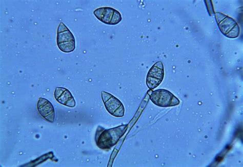 pyricularia oryzae wikispecies