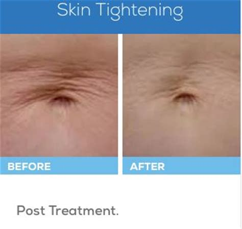 contour light body sculpting before and after 7 best velashape before and after images on pinterest