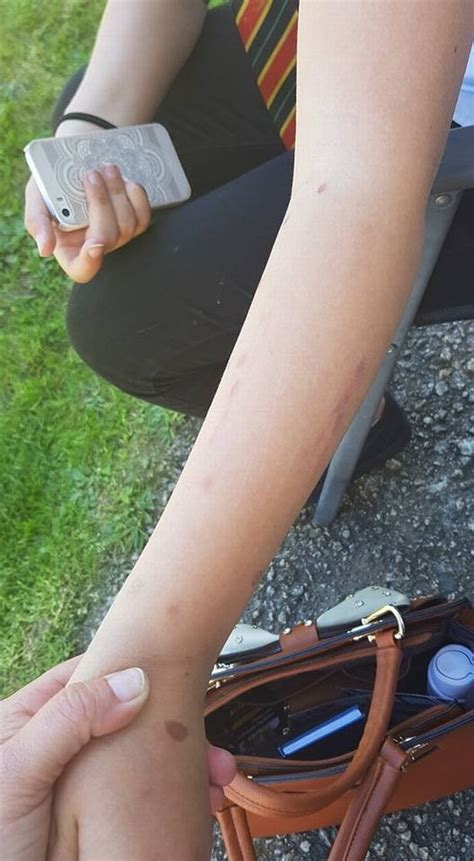 Girl, 12, burned her arm with deodorant