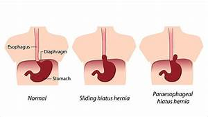 What Is A Hiatal Hernia