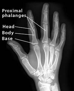 Proximal Phalanx  Definition  Location  Anatomy  Diagram