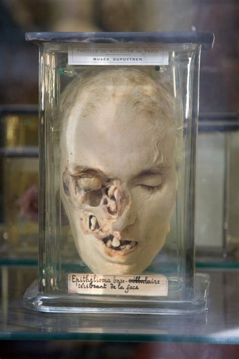 morbid anatomy musee dupuytren paris france