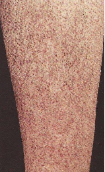 manchas en las piernas por diabetes fotos