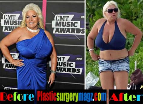 sexy pictures of beth chapman