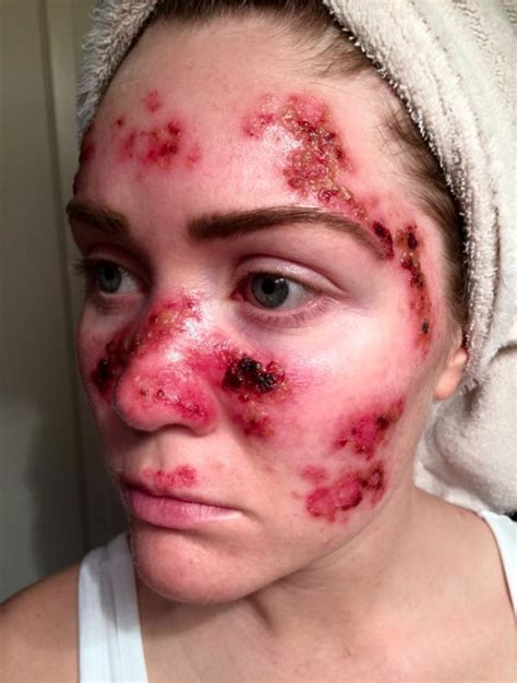 Tanning Bed Dangers woman s graphic skin cancer selfie highlights dangers of