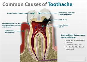 over the counter remedies for toothache pain