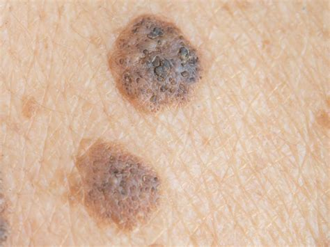 Melanoma Stages Types Causes And Pictures