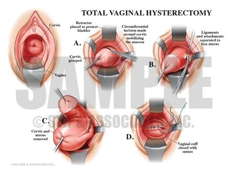 Pin on Female Reproductive System
