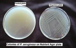 Colonies Of Pseudomonas Aeruginosa On Nutrient Agar Plate