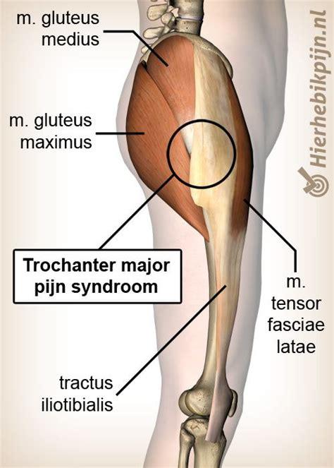 ms en pijn in benen