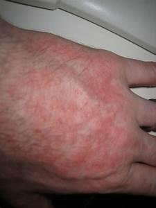 The Rash, it actually doesn't burn! - skin sunlight UV ...