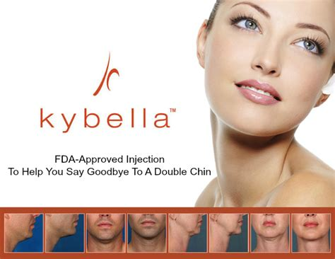 Kybella, Is it Right for You? Find Out Today!