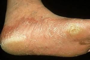 Мокрые ноги грибок