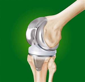 Deep Joint Infection Tucson Attorneys
